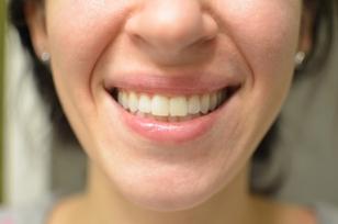teeth front