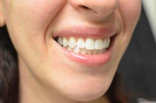 teeth side after