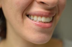 teeth side